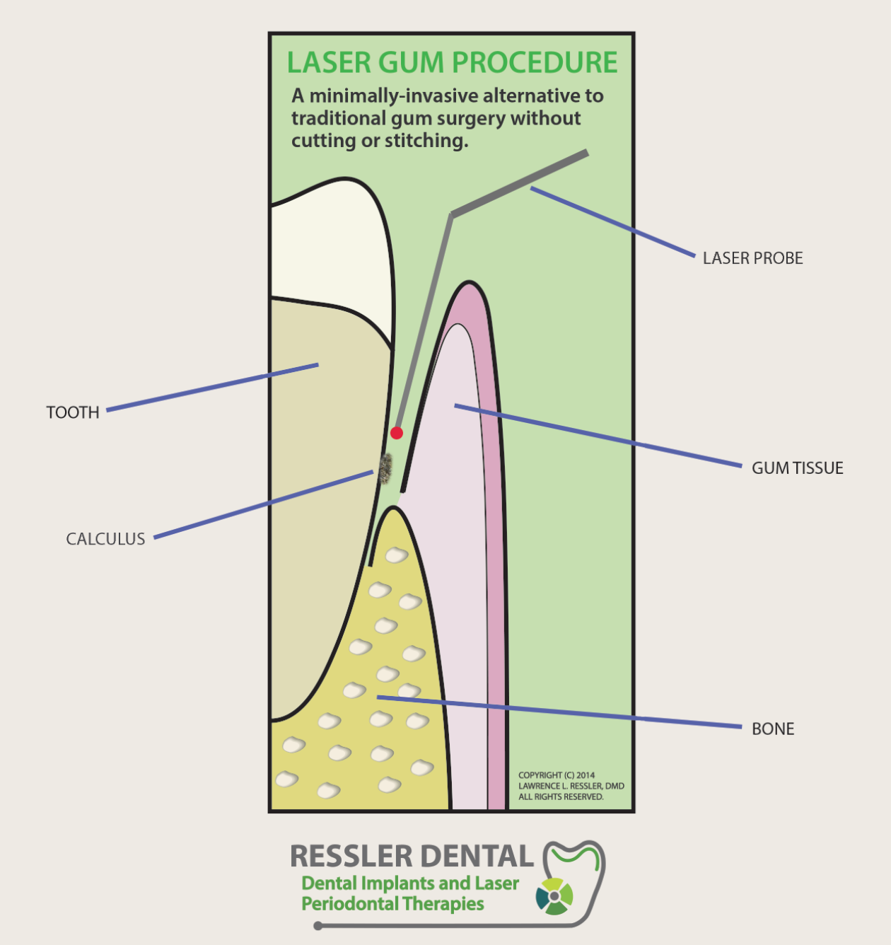 LASER-GUM-TREATMENT-IN-BOCA-RATON