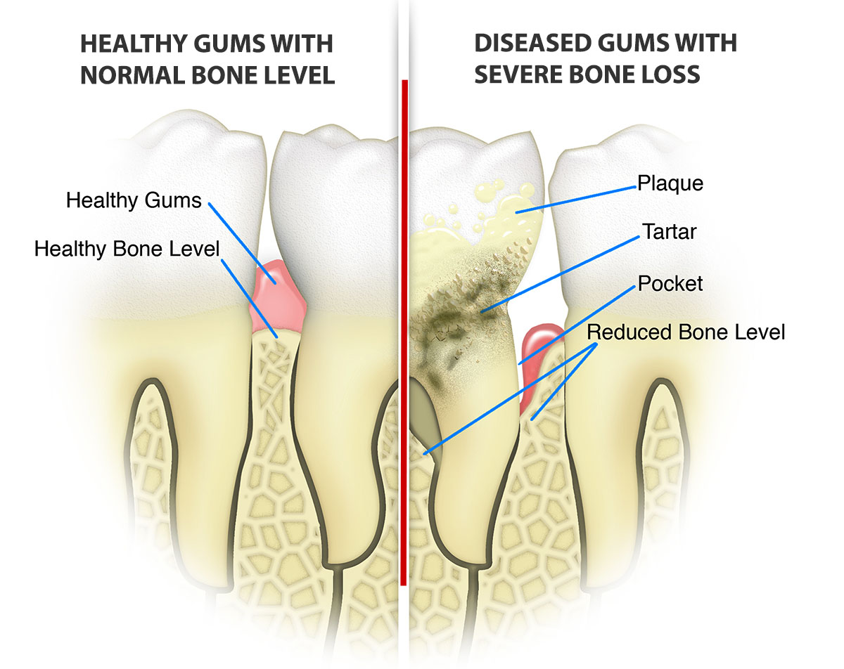 laser-gum-treatment-boca-boynton